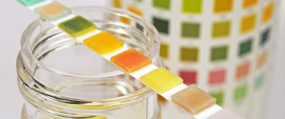 Цвет мочи поможет определить лейкоциты