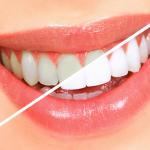 Отбелить зубы в домашних условиях – миф или реальность