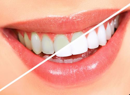 Хорошие средства для отбеливания зубов. Эффективные препараты и способы отбеливания зубов