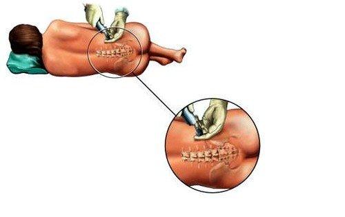 после эпидурального обезболивания, процесс восстановления проходит более благоприятно