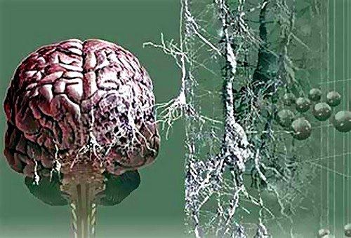 До тяжёлой стадии болезни Альцгеймера проходит довольно много времени