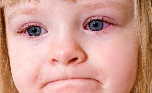 Заболевание помимо покраснения сопровождается припухлостями век