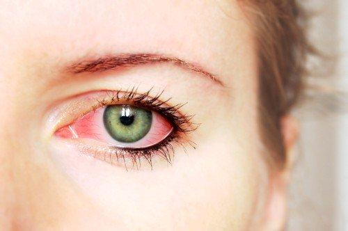 Конъюнктивит - заболевание, связанное с воспалительными процессами на оболочках глаза