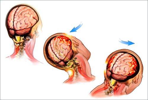 Признаки сотрясения мозга – наличие травмы, ушиба головы, в результате которой мозговая ткань ударяется о черепную коробку
