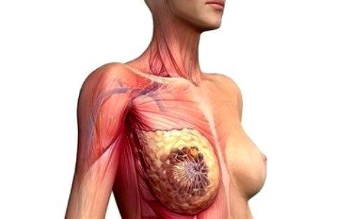Признаки рака грудины у женщин фото