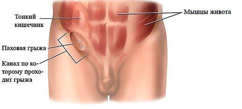 Паховая грыжа у мужчин не имеет тяжелых последствий после операции в большинстве случаев