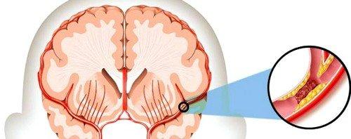Инсульт геморрагический может произойти внезапно после стрессовых ситуаций, активных физических нагрузок или просто при переутомлении