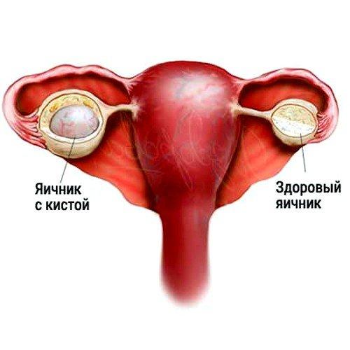 Молочница у женщин - фото как поставить диагноз самостоятельно