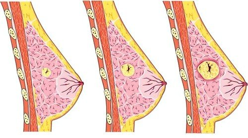 Фиброзно-кистозные изменения – это появление аномальных фрагментов в молочной железе