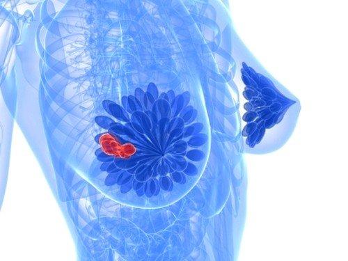 Фиброзно-кистозная мастопатия: симптомы фото