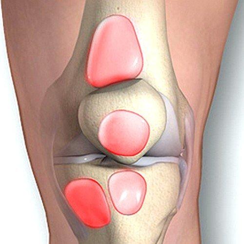 травматизм коленной чашечки как причина бурсита