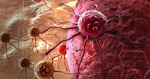 Рак крови симптомы фото