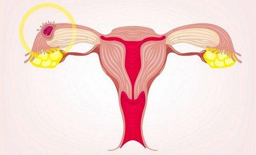Чаще всего процесс имплантации протекает в промежутке между 6-м и 12-м днями с момента произошедшего оплодотворения