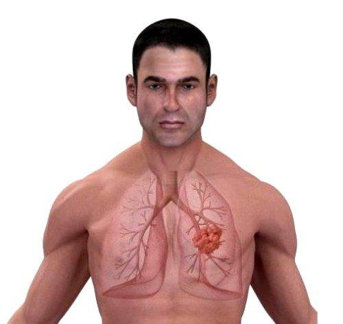 При заболевании может быть особенно поражена какая-либо артерия