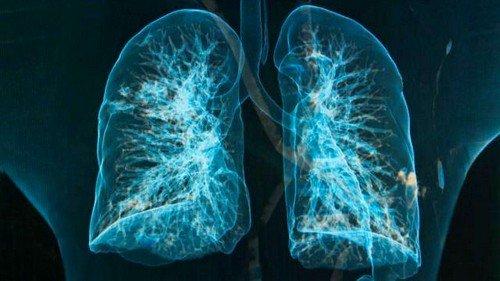 Эмфизема легких — что это такое, как лечить фото