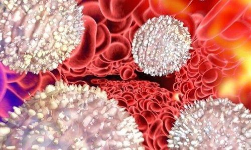 Лейкоциты в моче – кровянистые белые клетки