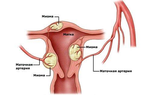 Маточная миома – это некие образования, которые в качестве паразитов появляются на стенках женской матки