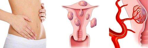 После процедуры эмболизации миома не исчезает мгновенно, но постепенно уменьшается и пропадает полностью