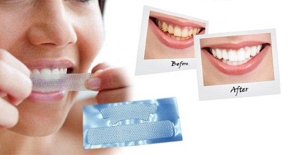 Полоски для отбеливания зубных рядов