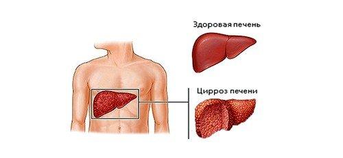 Цирроз печени: последняя стадия