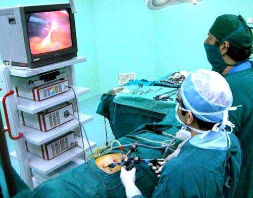 Хирургическая операция при кистозе