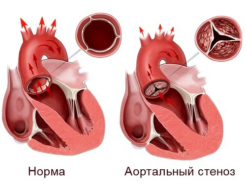 Аортальный порок сердца