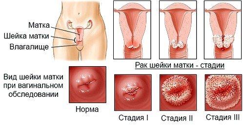 Стадии развития рака матки