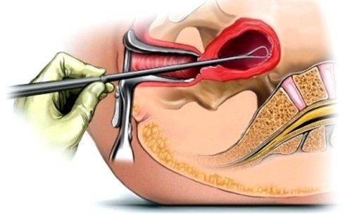 Рак шейки матки: признаки и симптомы