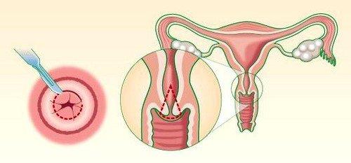 Эрозия шейки матки симптомы