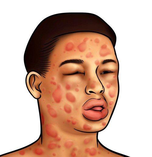Ситуация осложнена тем, что неизвестно, когда и как аллерген может себя проявить