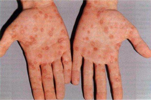 Симптомы сифилиса у мужчин также проявляются в белесых пятнах на коже