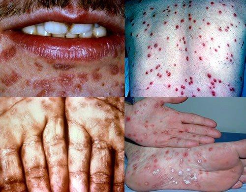 Первые симптомы сифилиса - это своеобразная сыпь, похожая на ветряную оспу