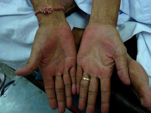 кожа приобретает нездоровый вид