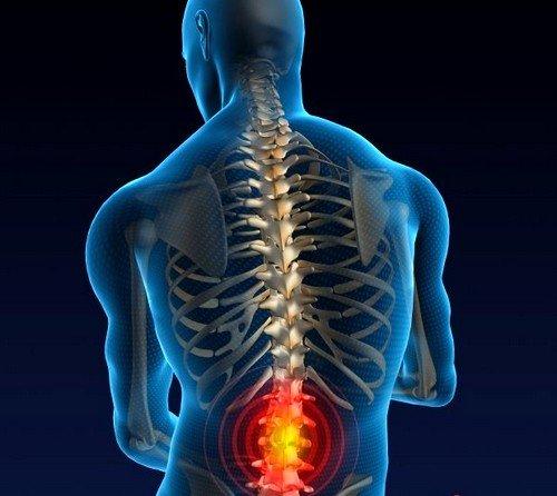 Под компрессионным переломом позвоночника понимается достаточно серьезная и опасная травма, нередко настигающая людей