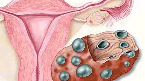Сдача крови на уровень глюкозы показывает возможные отклонения