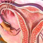 Как лечить поликистоз яичников