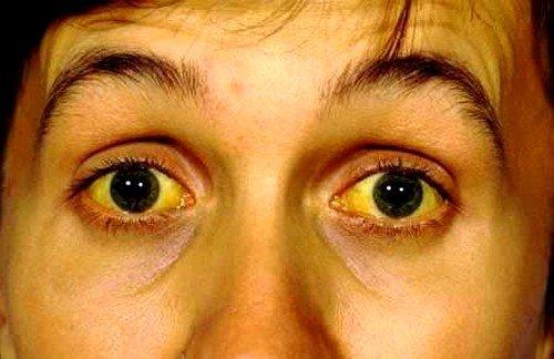 Механическая желтуха при заболеваниях печени и поджелудочной железы