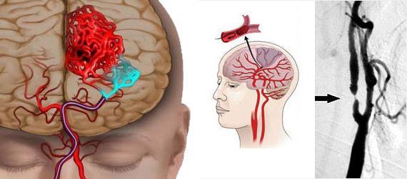 Спазм сосудов головного мозга ведет к сужению просвета сосуда