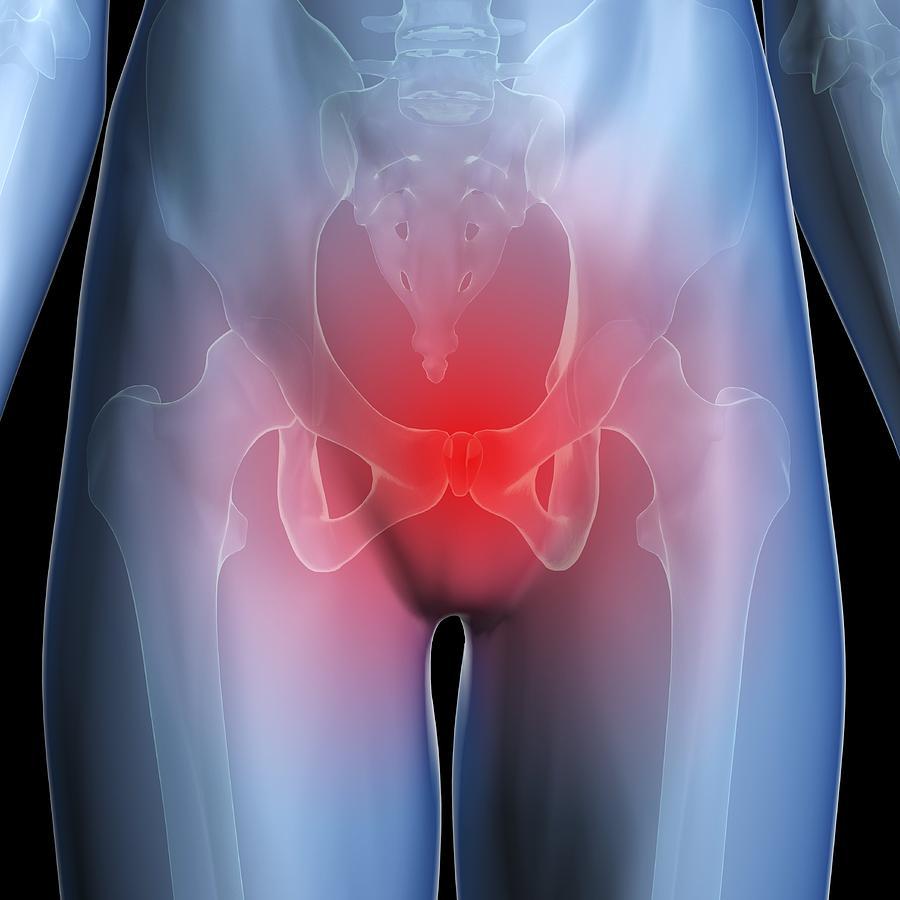 Воспалительное заболевание органов малого таза