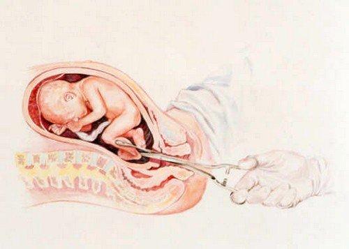 Вакуумный аборт: сроки фото