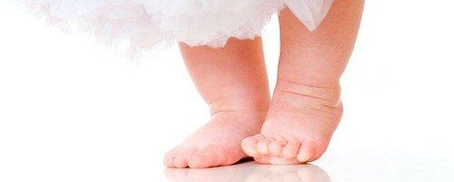 Вальгусная деформация стопы у детей: лечение фото