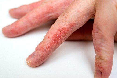 В истинной форме экзема проявляется резко, на коже образуются пузырьки, в которых накапливается серозная жидкость