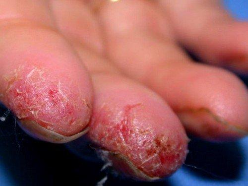 Главным фактором, способствующим появлению экземы, являются действующие непосредственно на кожный покров аллергены экзогенного типа