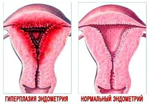 Лечение при гиперплазии эндометрия должно проводиться обязательно, так же как и регулярное наблюдение