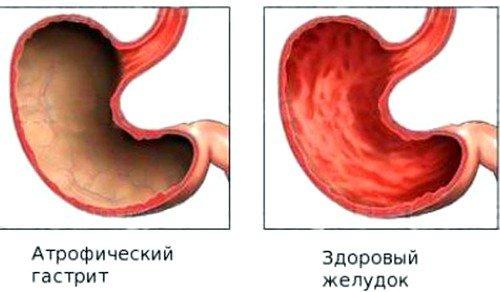 Острый или активный атрофический гастрит – патология, характеризующаяся резкими приступами заболевания, имеющие кратковременные болевые ощущения