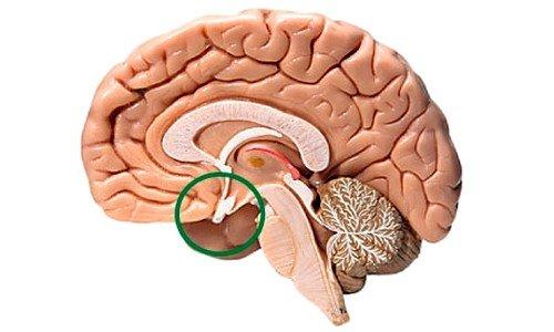 Аденома гипофиза головного мозга фото