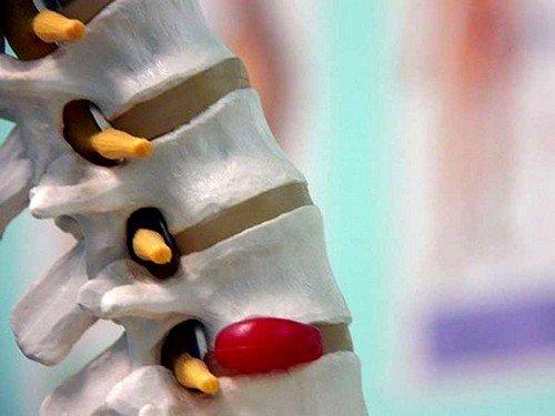 Поясничная грыжа: симптомы и лечение фото