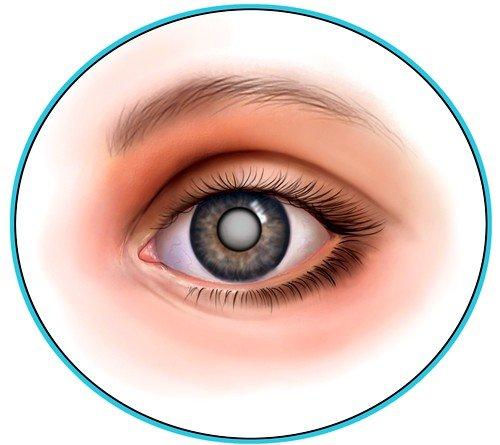 Причины катаракты фото