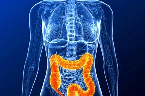 Язвенный колит – это патологические процессы с толстой кишке, при которых наблюдается геморрой, кровяные и гнойные выделения, повреждаются оболочки органа