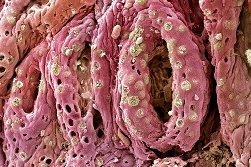 Признаки колита кишечника - это нарушение барьерной функции его эпителия и других оболочек